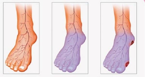 Улучшить циркуляцию крови в ногах при диабете
